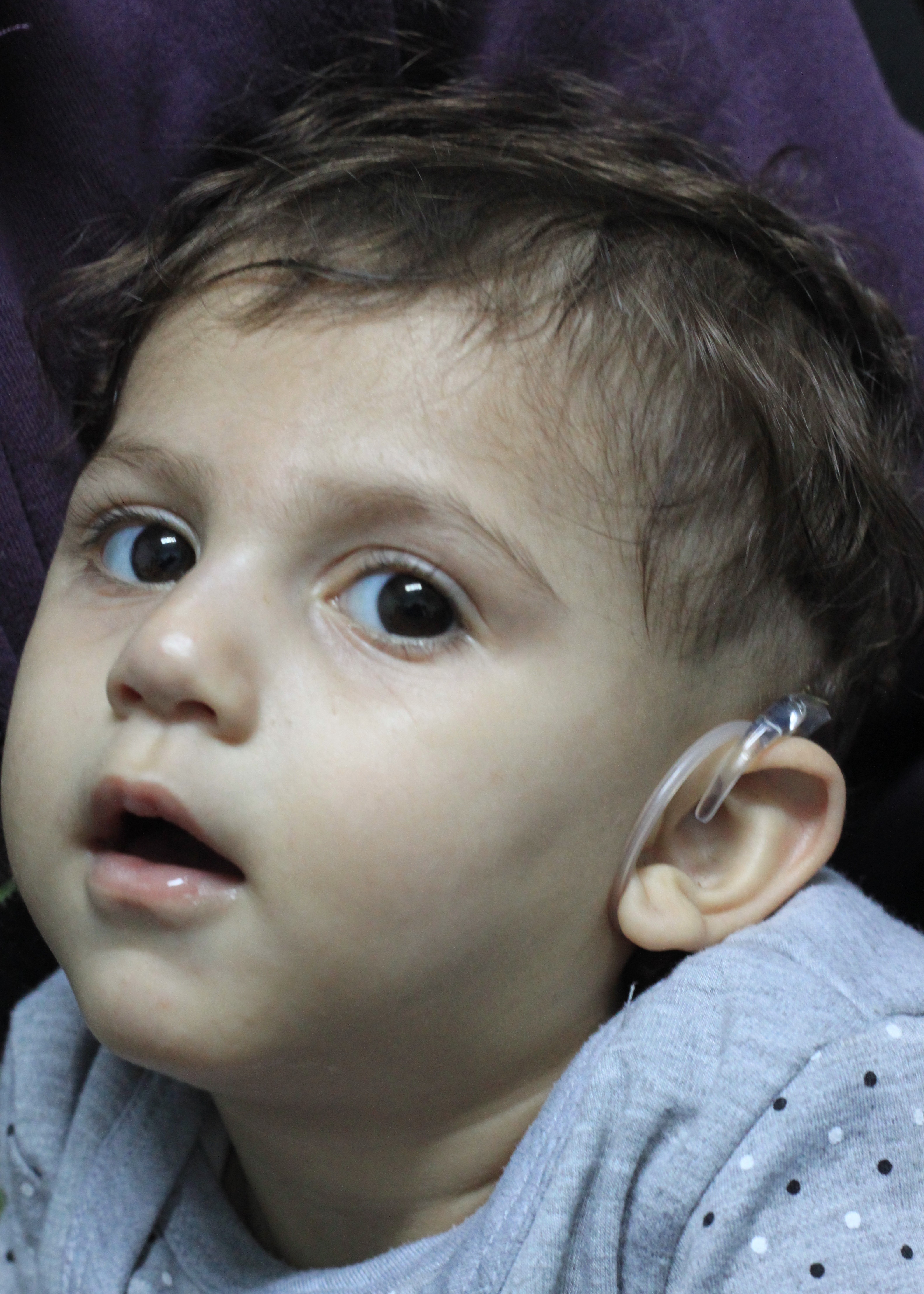 Prince Sultan Chair gives 18 month-old Palestinian girl the gift of hearing